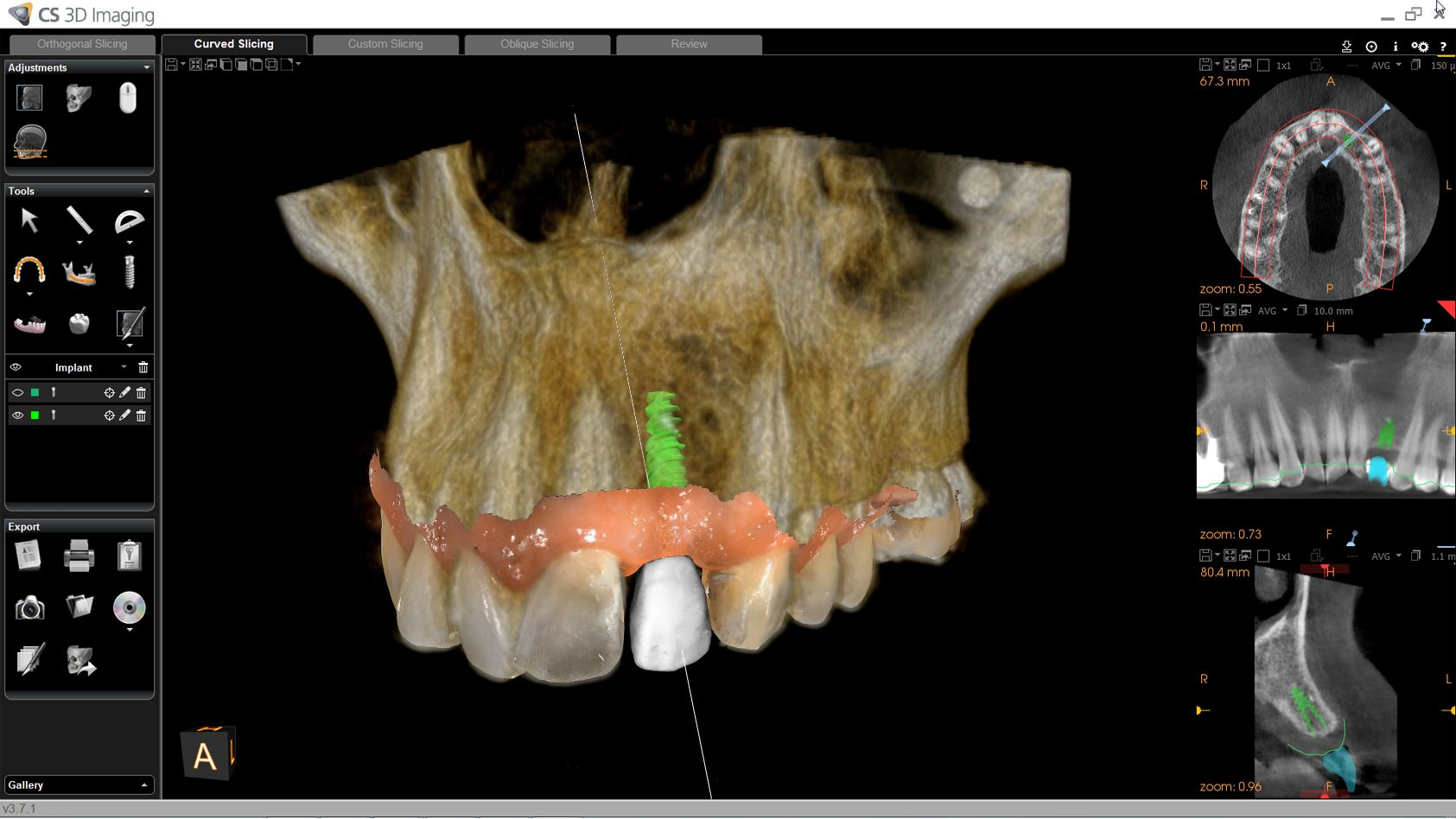 Digital Facial & Intraoral Scans